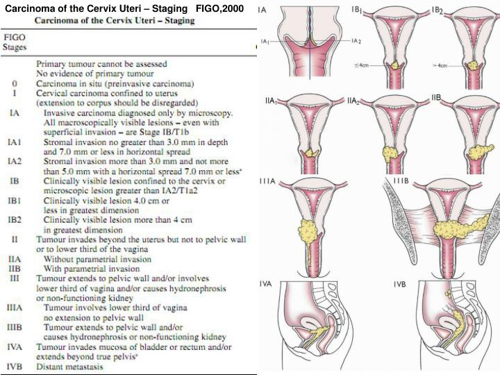 Carcinoma of the Cervix Uteri – Staging   FIGO,2000