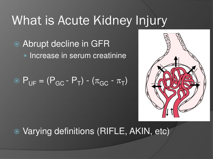 What is Acute Kidney Injury