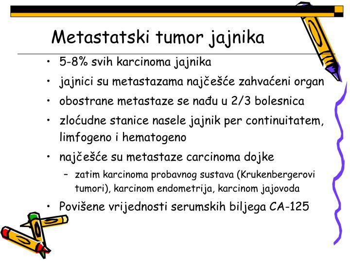 Metastatski tumor jajnika