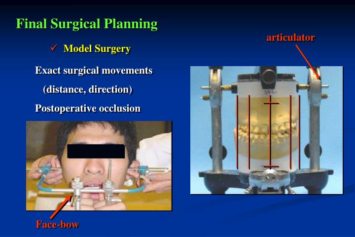 Final Surgical Planning