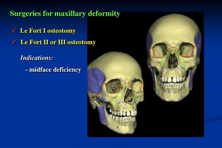Surgeries for maxillary deformity