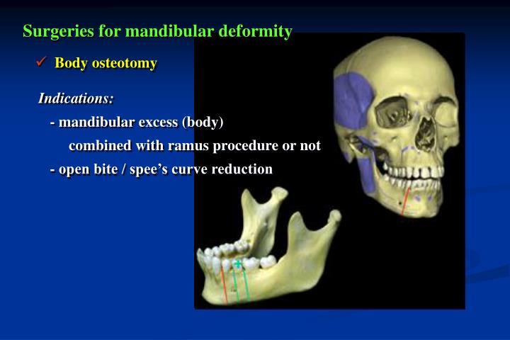 Surgeries for mandibular deformity