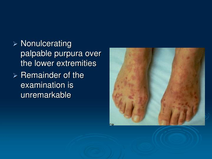 Nonulcerating palpable purpura over the lower extremities