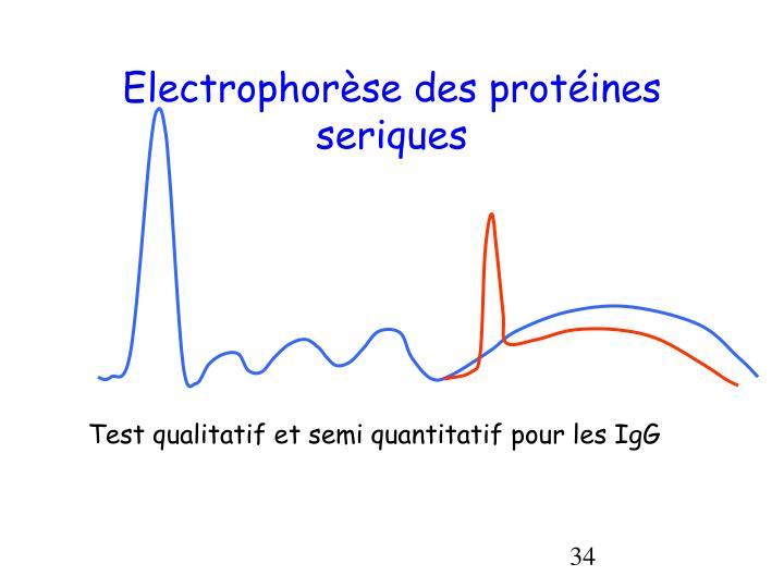 Electrophorèse des protéines seriques