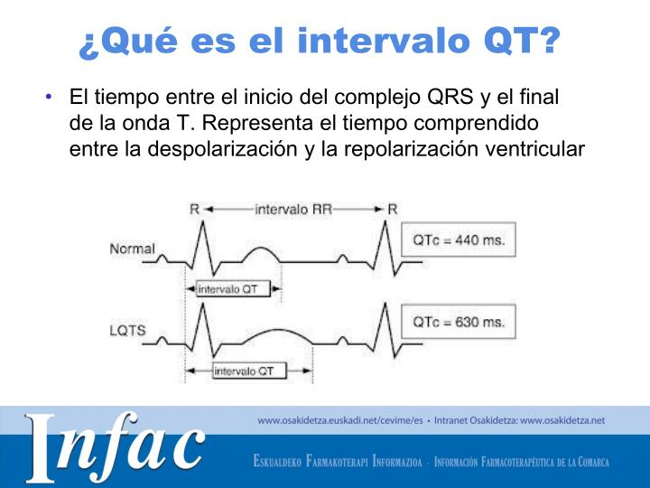 ¿Qué es el intervalo QT?