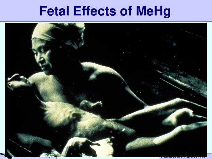 Fetal Effects of MeHg