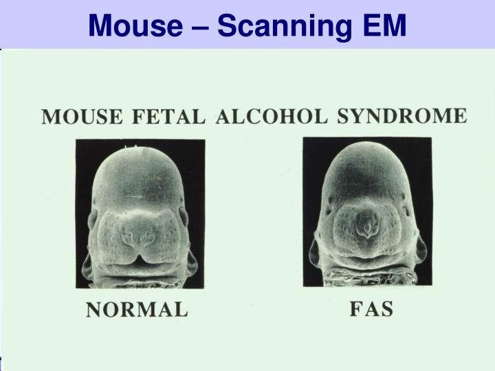 Mouse – Scanning EM