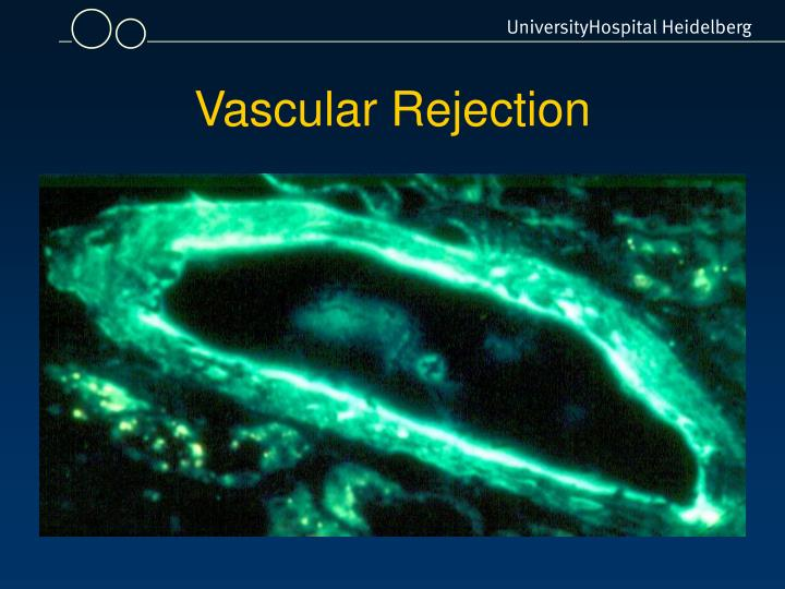 Vascular Rejection