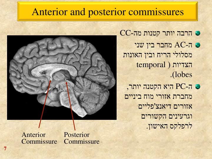 Anterior and posterior commissures