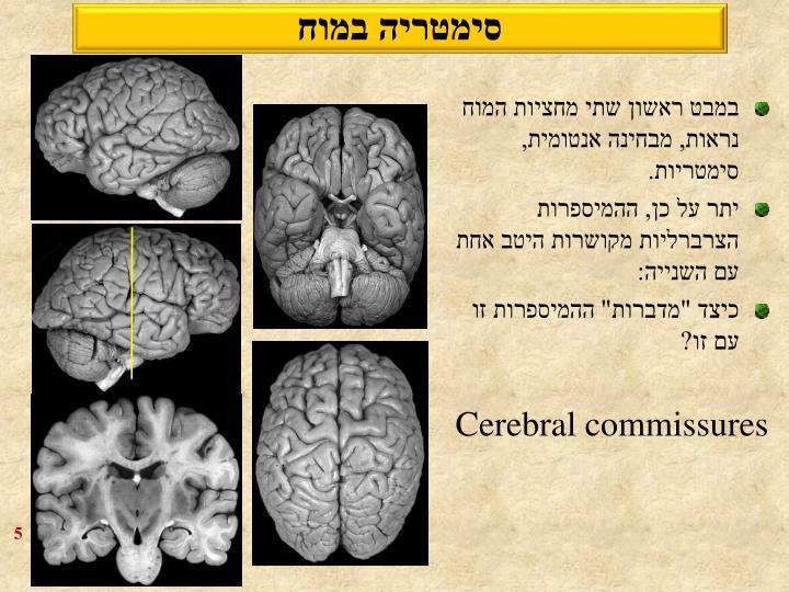 סימטריה במוח