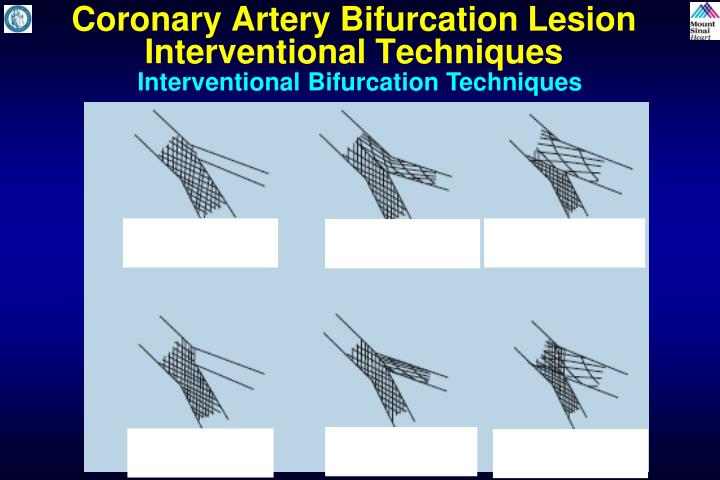 Coronary Artery Bifurcation Lesion  Interventional Techniques