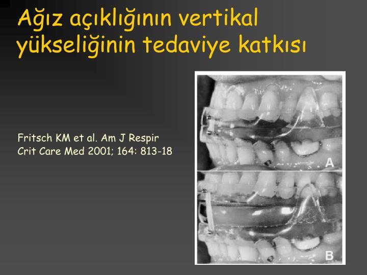 Ağız açıklığının vertikal yükseliğinin tedaviye katkısı