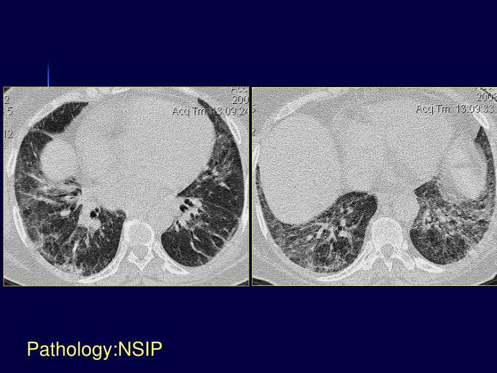 Pathology:NSIP
