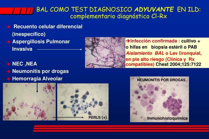 Recuento celular diferencial