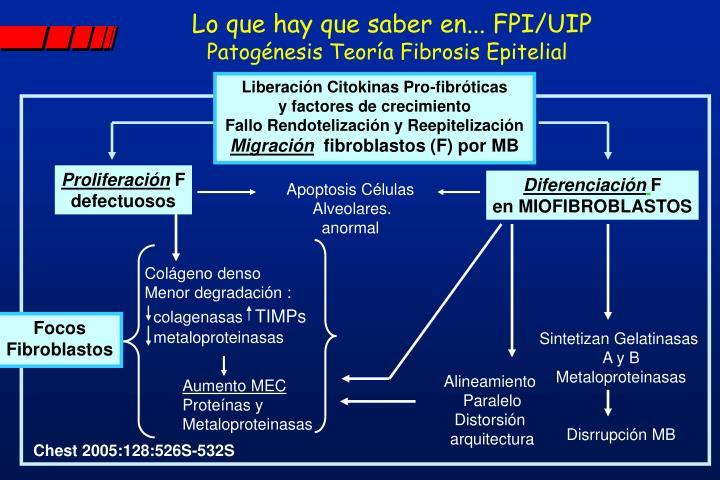 Lo que hay que saber en... FPI/UIP