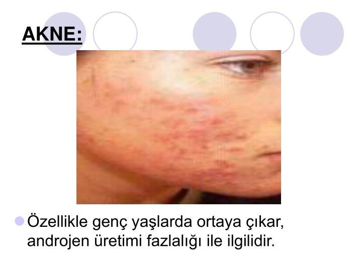AKNE: