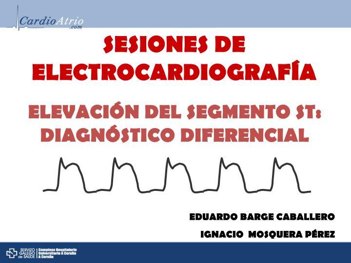 SESIONES DE ELECTROCARDIOGRAFÍA