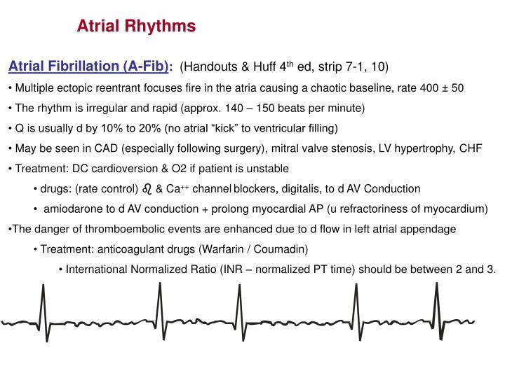 Atrial Rhythms