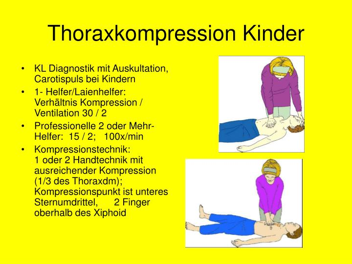 Thoraxkompression Kinder