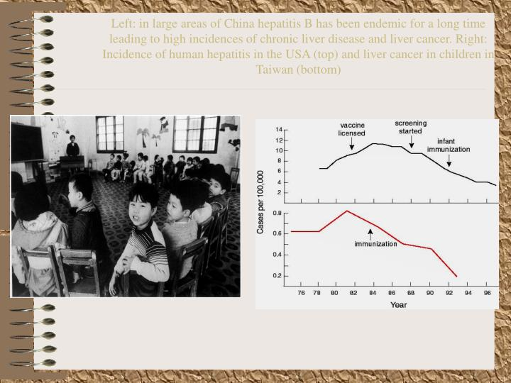 Left: in large areas of China hepatitis B has been endemic for a long time leading to high incidences of chronic liver disease and liver cancer. Right: Incidence of human hepatitis in the USA (top) and liver cancer in children in Taiwan (bottom)