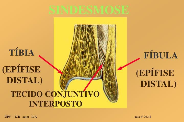 SINDESMOSE