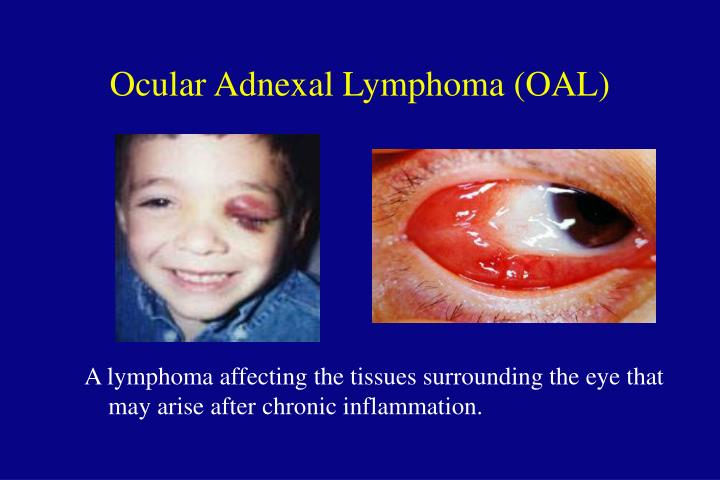 A lymphoma affecting the tissues surrounding the eye that may arise after chronic inflammation.