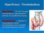 hipertireoz tireotoksikoz
