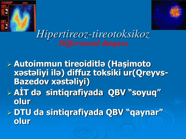 Hipertireoz-tireotoksikoz