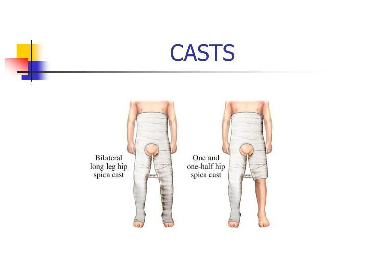 CASTS