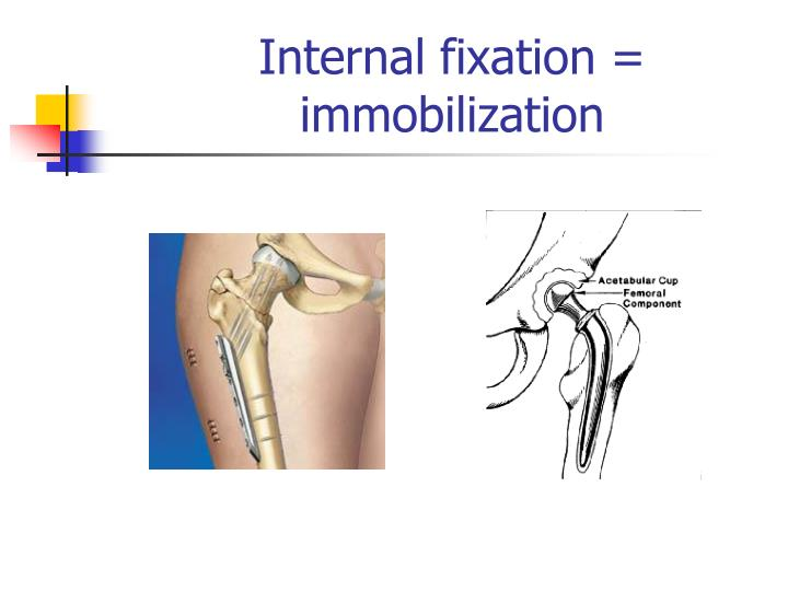 Internal fixation = immobilization