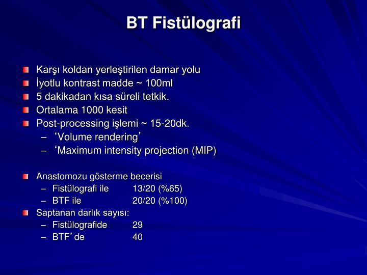 BT Fistülografi