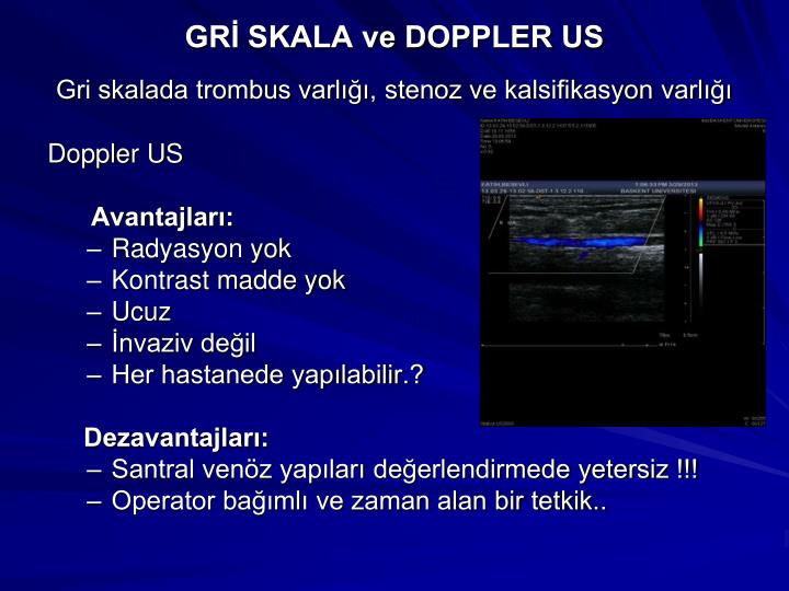 GRİ SKALA ve DOPPLER US