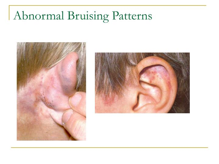 Abnormal Bruising Patterns