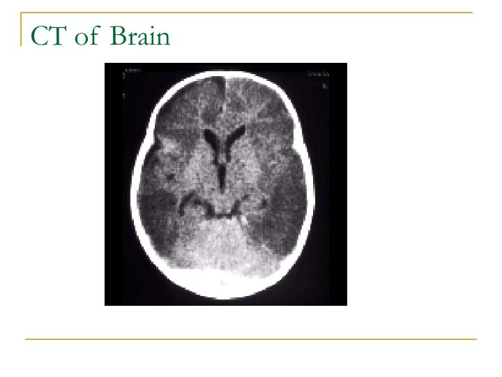 CT of Brain