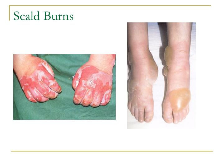 Scald Burns