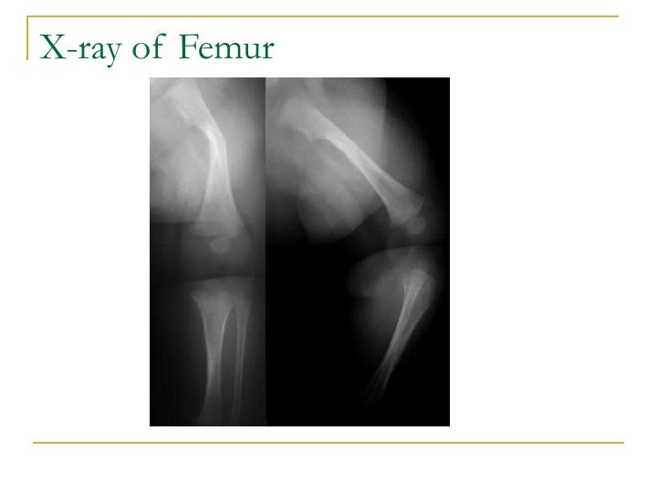 X-ray of Femur