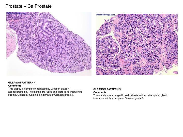 Prostate – Ca Prostate
