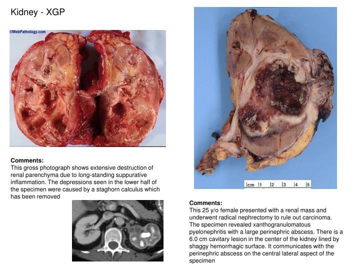 Kidney - XGP