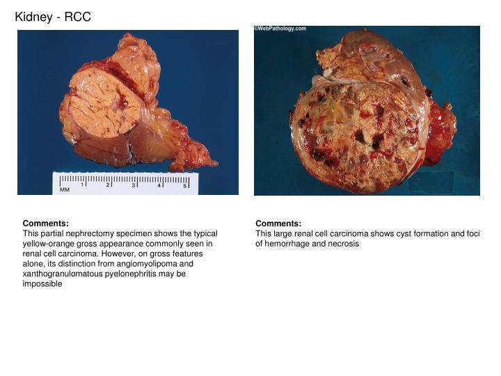 Kidney - RCC