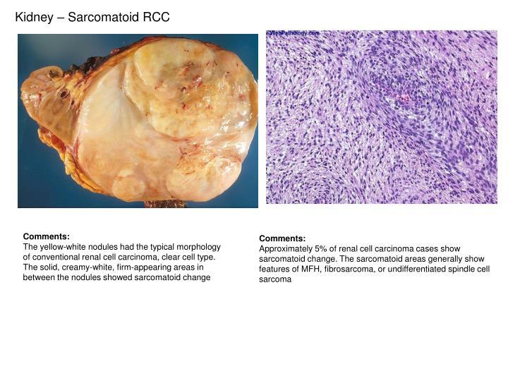 Kidney – Sarcomatoid RCC
