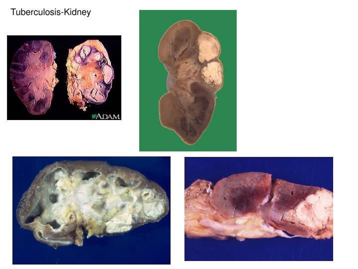 Tuberculosis-Kidney