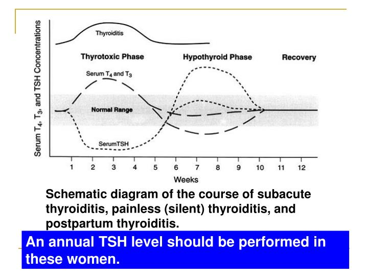 Schematic diagram of the course of subacute thyroiditis, painless (silent) thyroiditis, and postpartum thyroiditis.