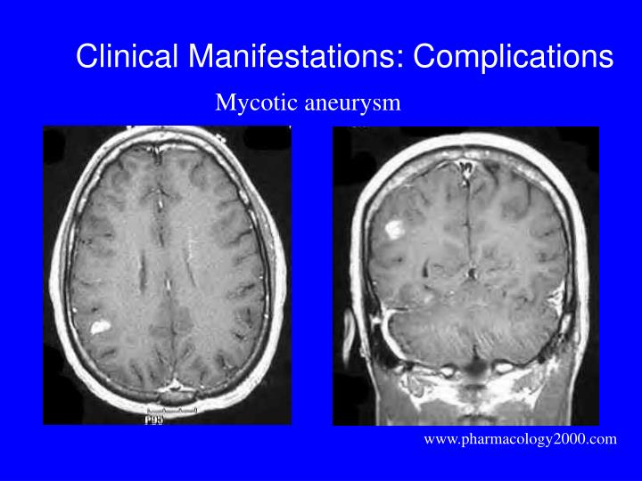 Clinical Manifestations: Complications