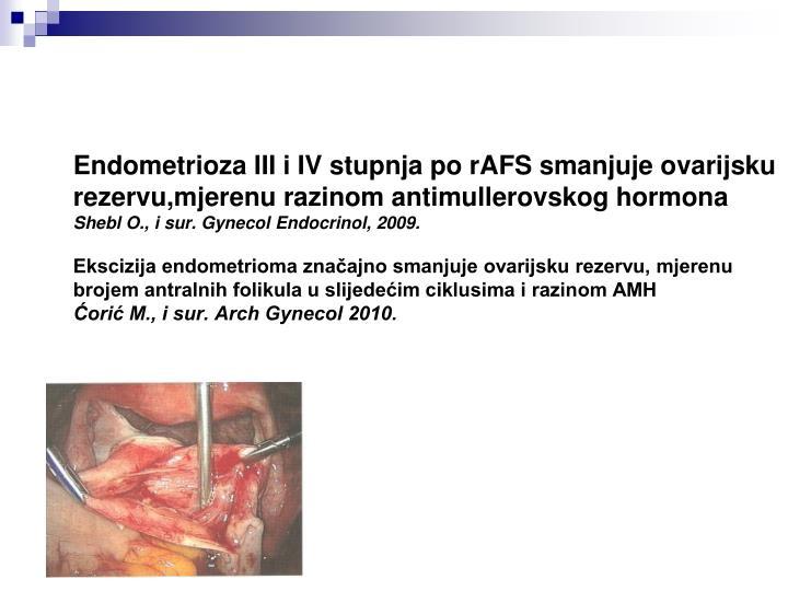 Endometrioza III i IV stupnja po rAFS smanjuje ovarijsku rezervu,mjerenu razinom antimullerovskog hormona
