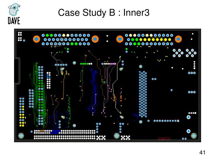Case Study B : Inner3