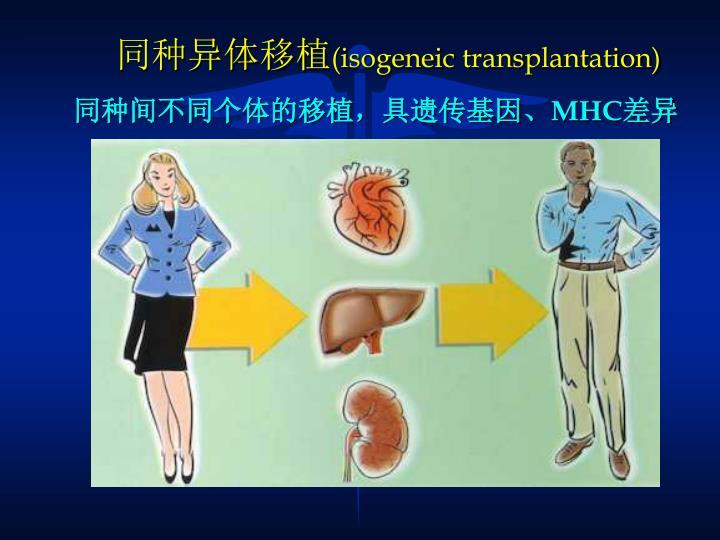同种异体移植