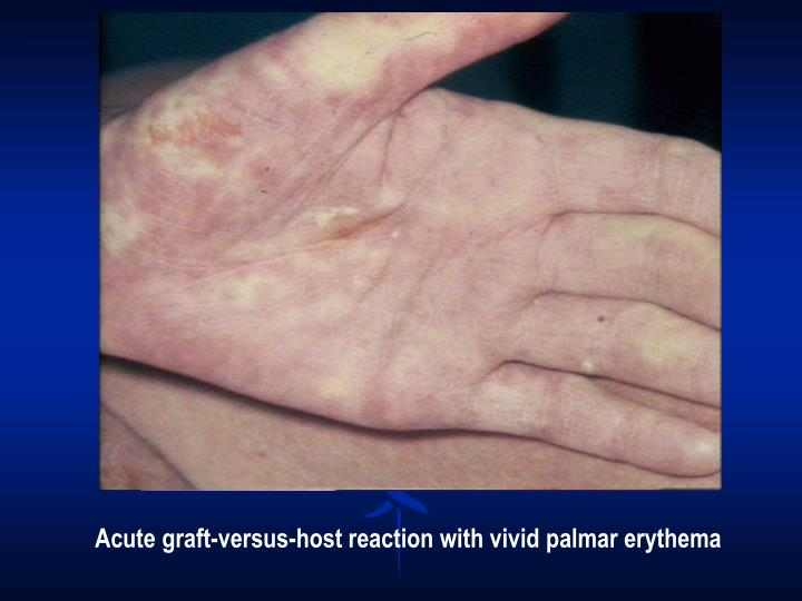 Acute graft-versus-host reaction with vivid palmar erythema