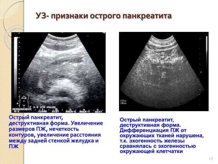 УЗ- признаки острого панкреатита