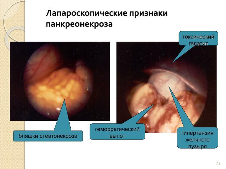 Лапароскопические признаки панкреонекроза