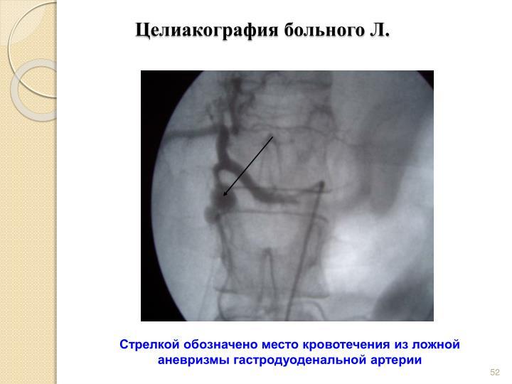 Целиакография больного Л.